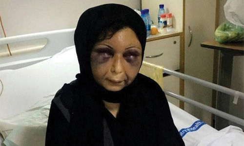 Attacked woman to be moved to Dar Al Aman