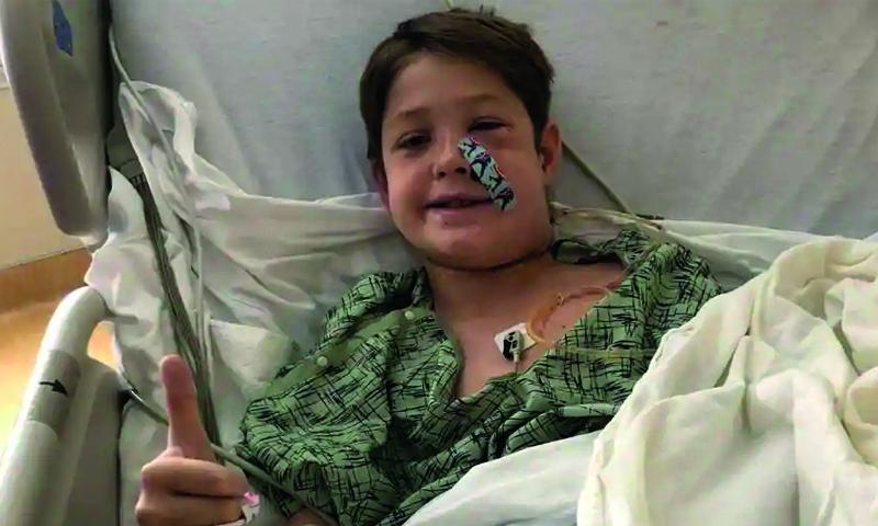 Boy survives impaling head on kebab skewer