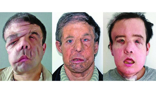 Frenchman gets 2nd face transplant