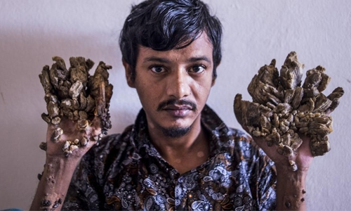 'Tree Man' wants hands amputated