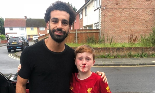 Salah makes injured fan's day with photo opportunity