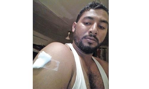 Dog attacks expat worker, injured