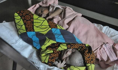 Study highlights high death risk for Africa twins